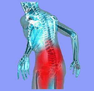 Difference Between Sciatica and Lower Back Pain