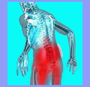 Myofascial Pain or Sciatica